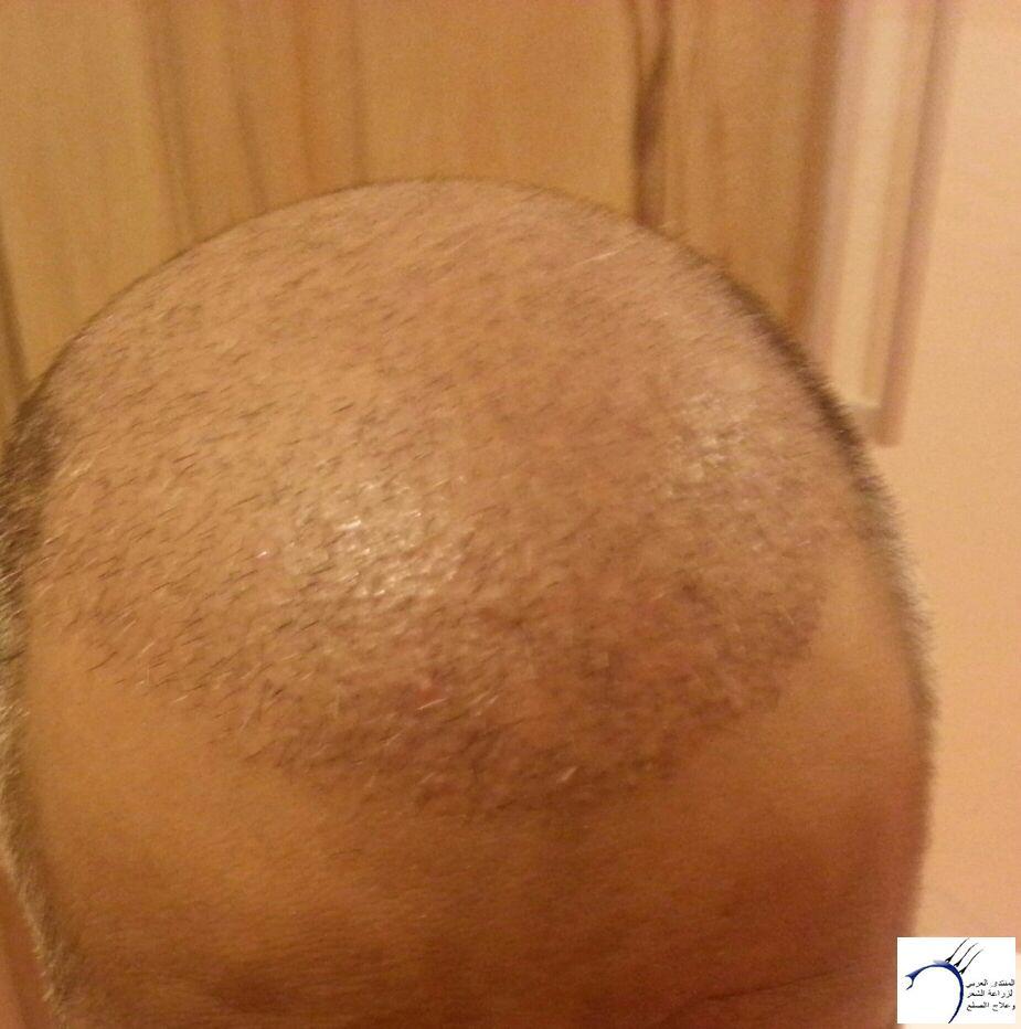 تجربتي لزراعة الشعر بمركز هاير www.hairarab.com57d3