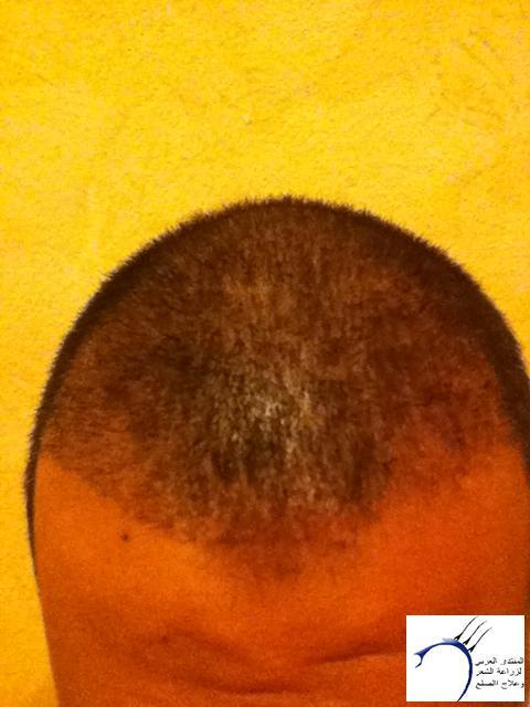 تجربتي لزراعة الشعر الدكتور Tayfun www.hairarab.com5895