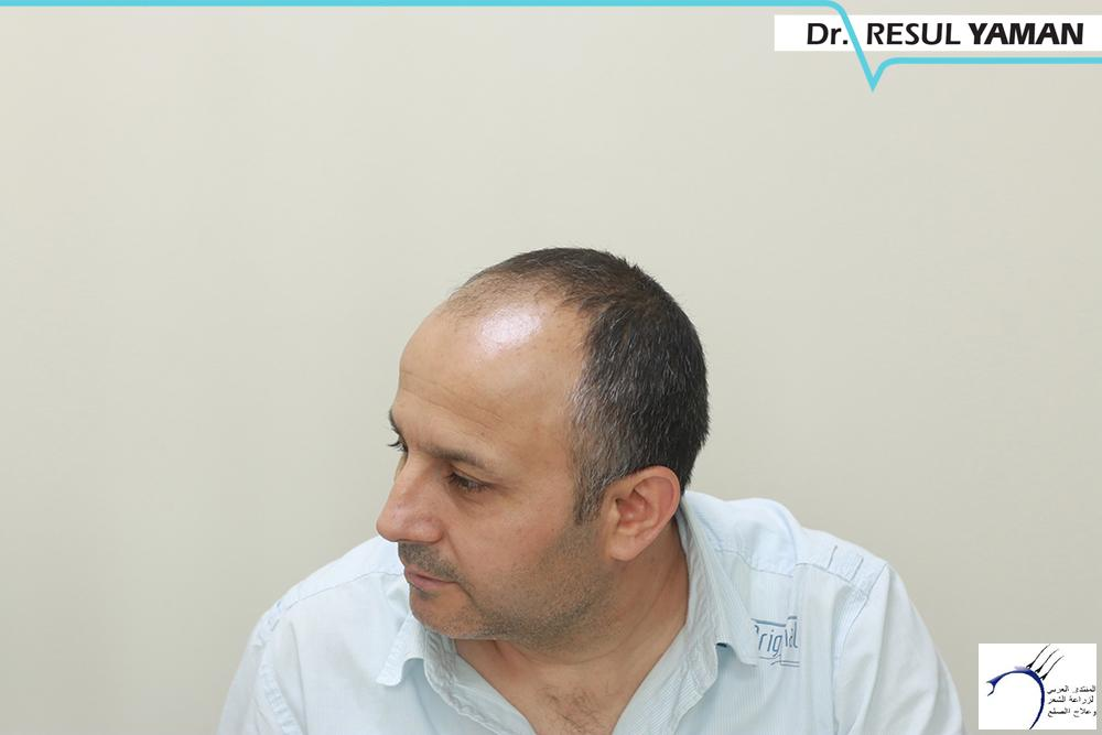 نتيجة السيد Emin Demir زراعة www.hairarab.com58d7