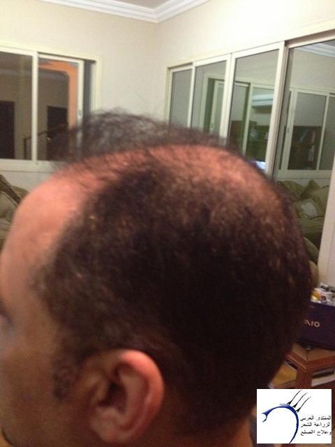 تجريتي والدكتور سركان (للعضو محمد) www.hairarab.com5c19