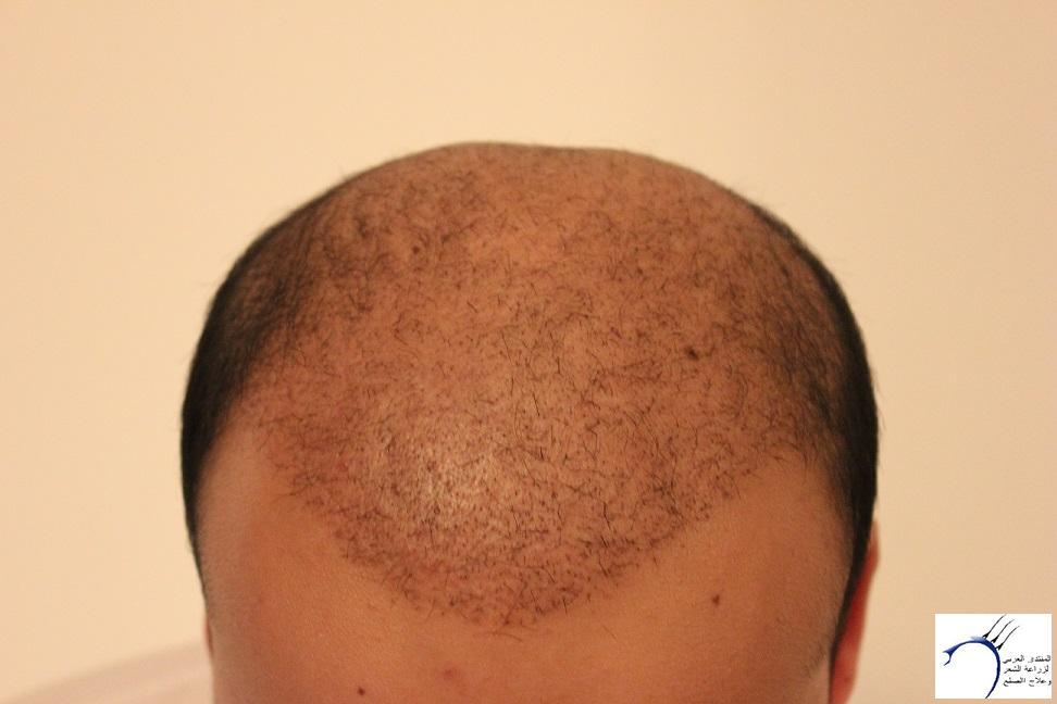 www.hairarab.com5fca