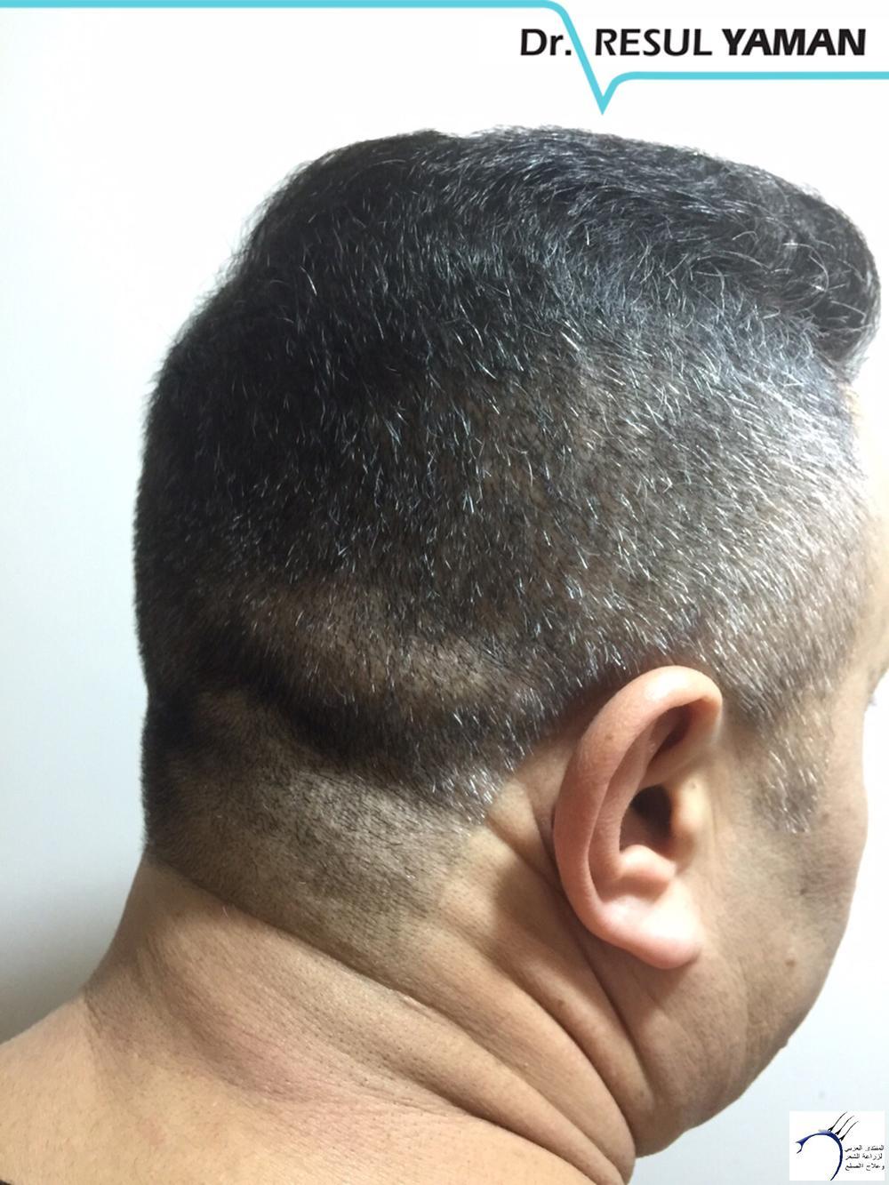 نتيجة السيد Emin Demir زراعة www.hairarab.com6026