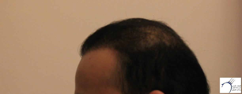 www.hairarab.com60aa