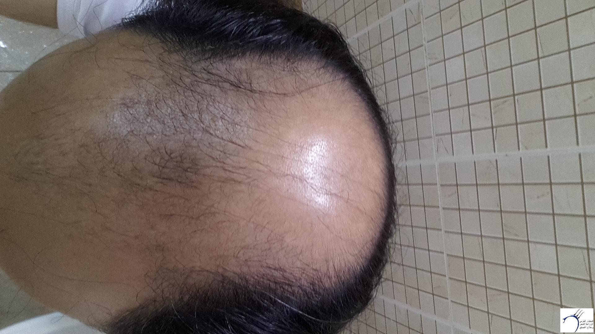 www.hairarab.com611d