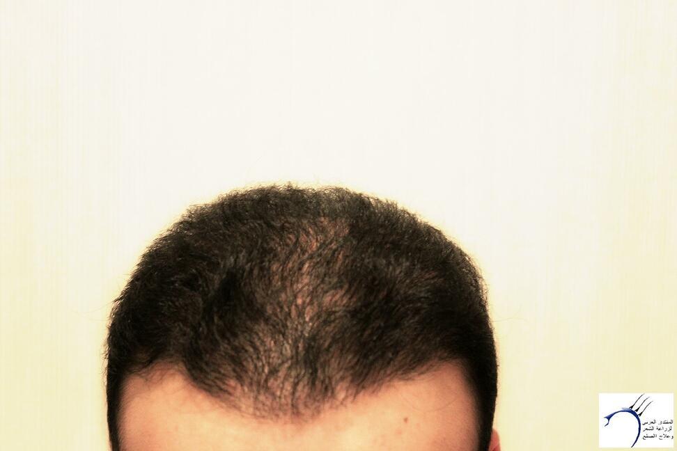 www.hairarab.com6173