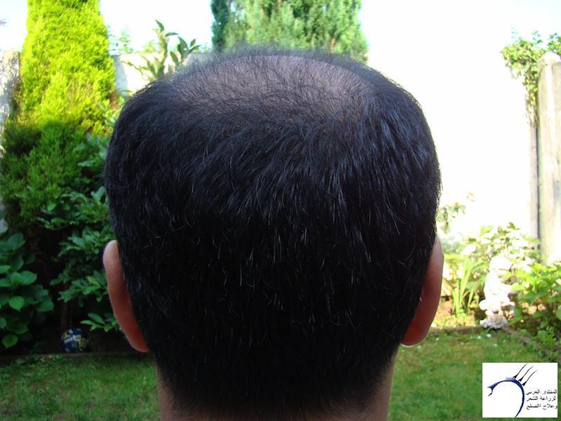 تجربتي لزراعة الشعر تركيا الدكتور www.hairarab.com62bb