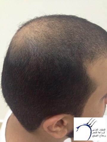 أقدم تجربـتي لزراعة الشعر مركـز www.hairarab.com62bf