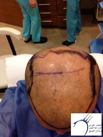 أقدم تجربـتي لزراعة الشعر مركـز www.hairarab.com63c3