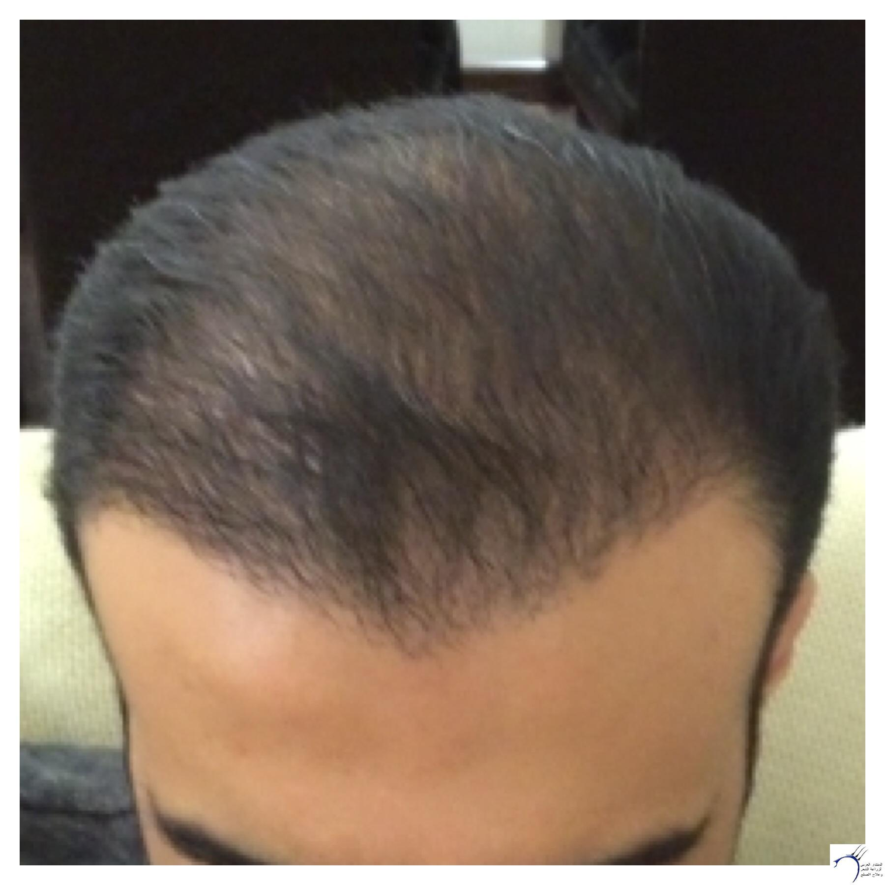 تجربتي محمد قوتشلو ...الشهر العاشر www.hairarab.com6431