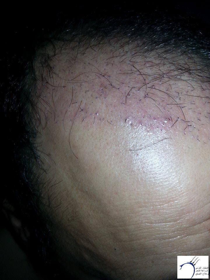 www.hairarab.com6770