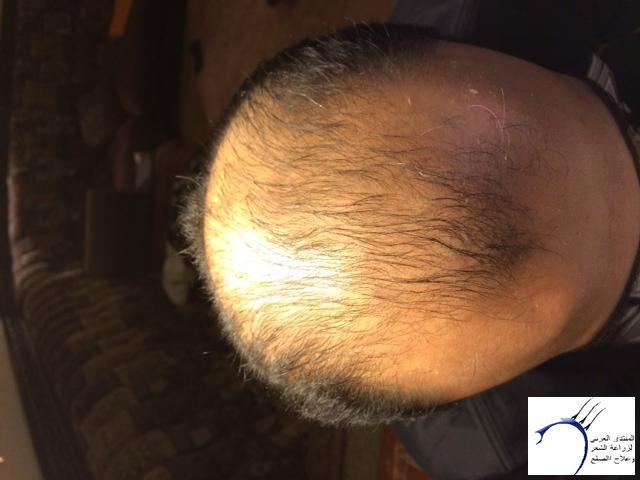 تجربتي محمد قوتشلو ...الشهر العاشر www.hairarab.com6ad8