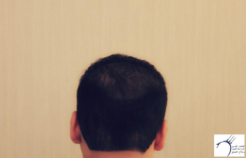www.hairarab.com6b32