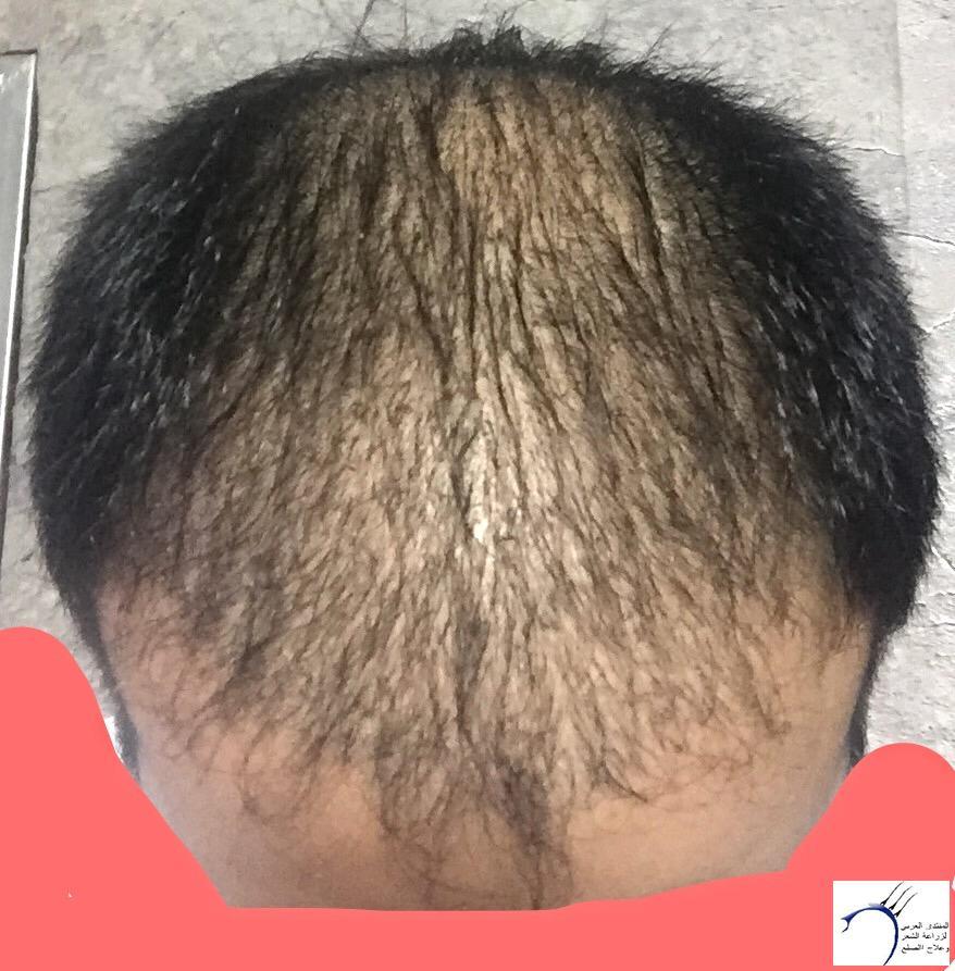 تجربتي رويال تحديث الشهر الرابع www.hairarab.com6c66