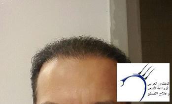 (قوتشلو) 2015 (تقرير www.hairarab.com6cb5