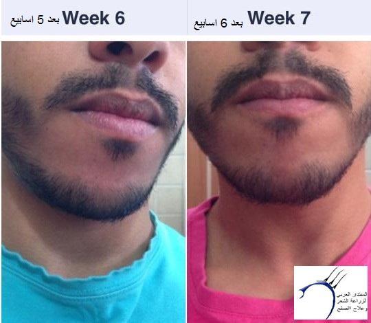 تجربتي بالصور بخاخ ريجين للذقن www.hairarab.com6f25