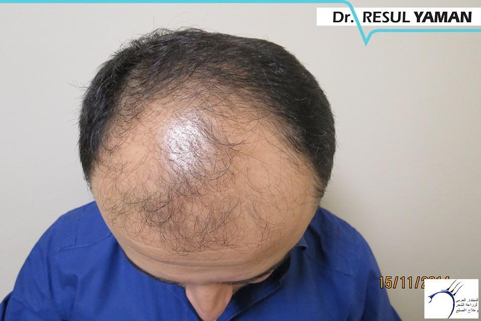 4800 بصيلة واحد-الدكتور رسول يمان www.hairarab.com70da