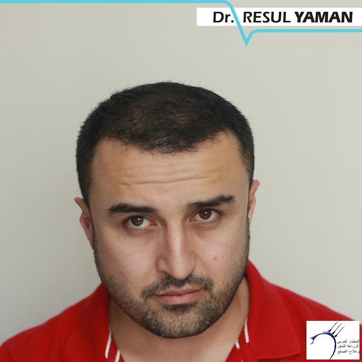 4800 بصيلة واحد-الدكتور رسول يمان www.hairarab.com751e