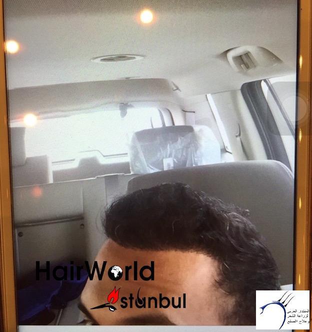 التجارب تركيا(مركز الهولندي) www.hairarab.com7530