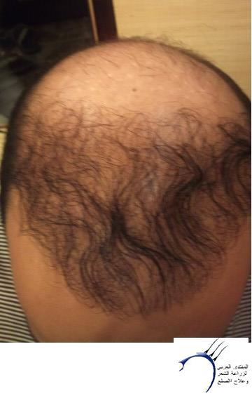www.hairarab.com75fc