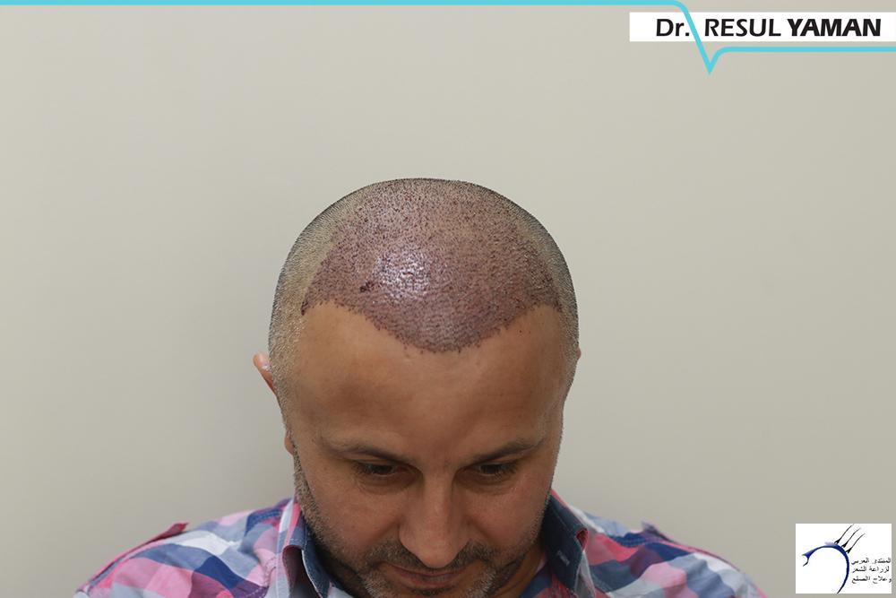 نتيجة السيد Emin Demir زراعة www.hairarab.com76d7