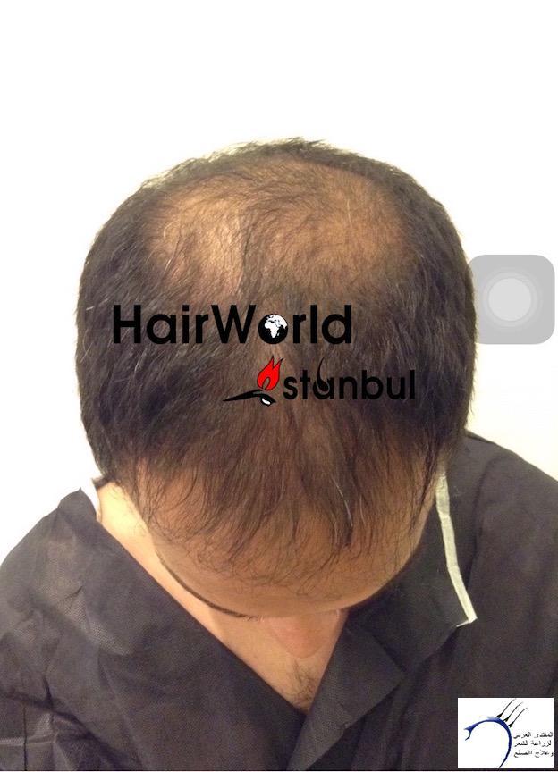 التجارب تركيا(مركز الهولندي) www.hairarab.com76f0