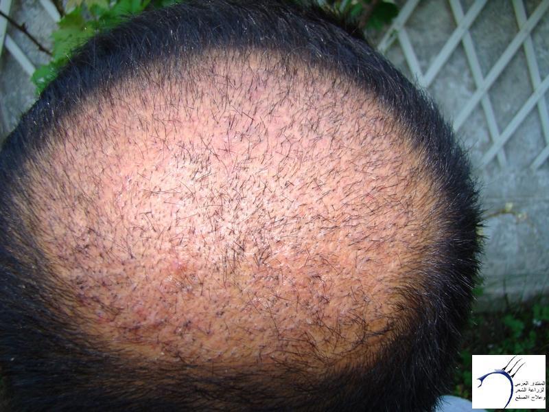 تجربتي لزراعة الشعر تركيا الدكتور www.hairarab.com778f