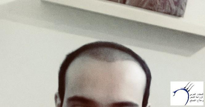 الدكتور www.hairarab.com7901