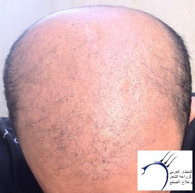 واخيرآآآآ (تحديث www.hairarab.com79ff