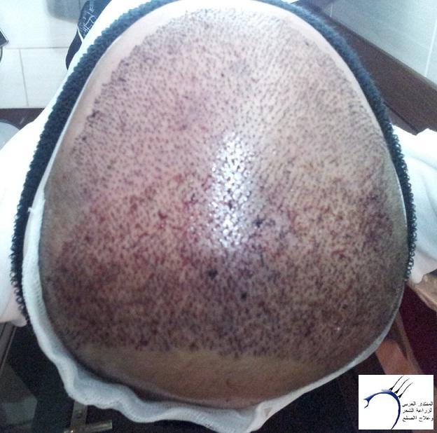 تجربتي الدكتور سركان Medhir نركيا www.hairarab.com7a29