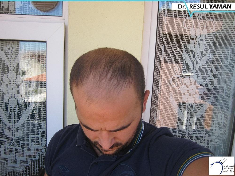 نتيجة زراعة 4680 بصيلة عامين www.hairarab.com7ace