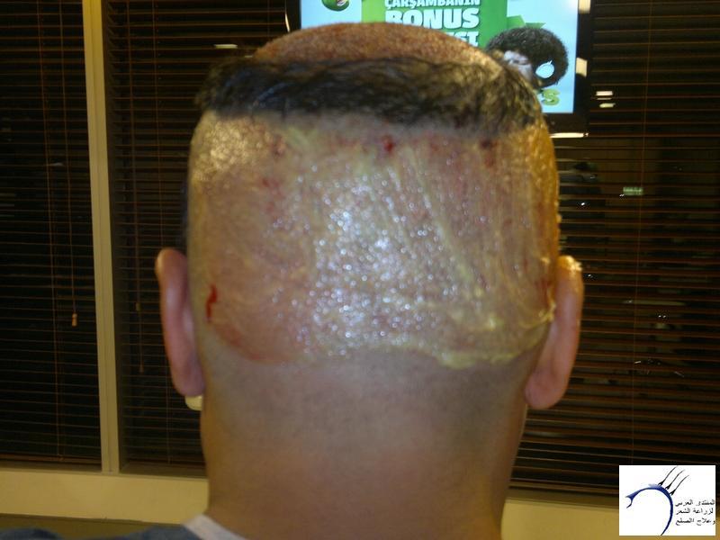 تجربتي لزراعة الشعر تركيا الدكتور www.hairarab.com7b2e