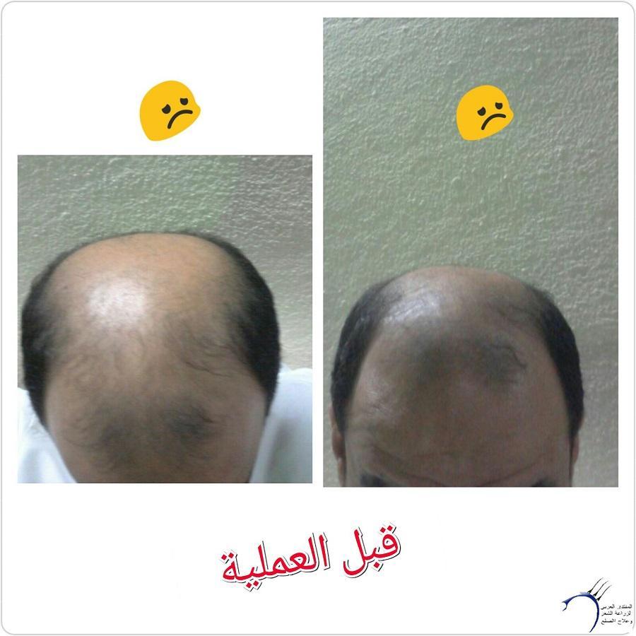 (تحديث بعدسنة)تجربتي بالصور الاخصائي محمد www.hairarab.com7c81