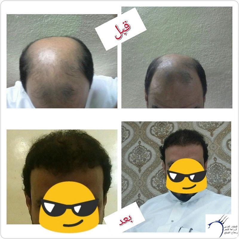 (تحديث بعدسنة)تجربتي بالصور الاخصائي محمد www.hairarab.com7d7c
