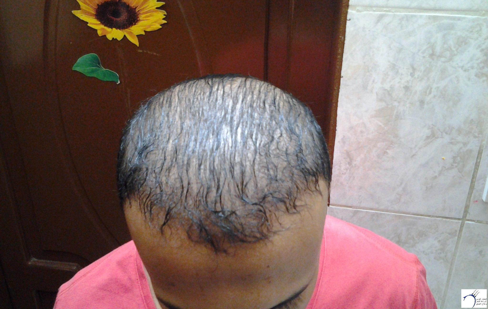 الدكتور (تحديث السابع) www.hairarab.com8061