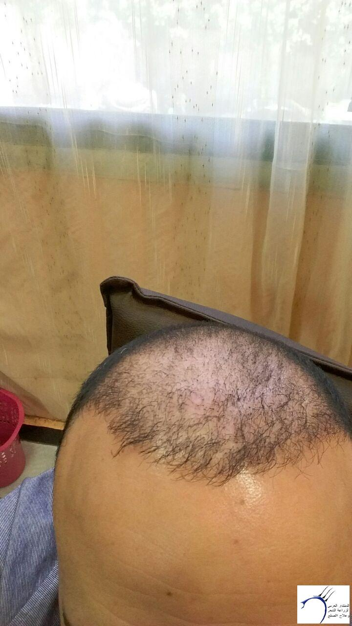 www.hairarab.com80fe
