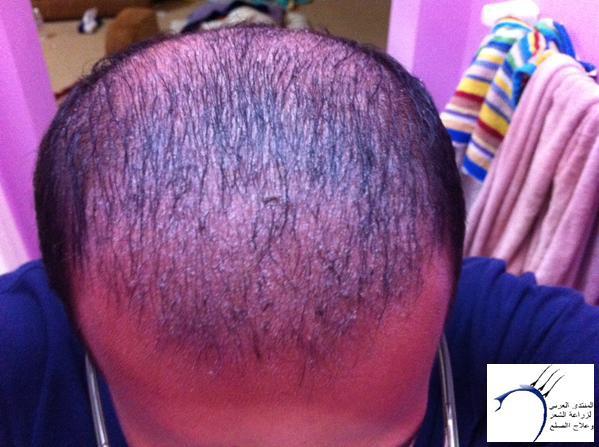 www.hairarab.com8170