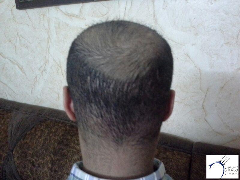 الدكتور (تحديث السابع) www.hairarab.com82db