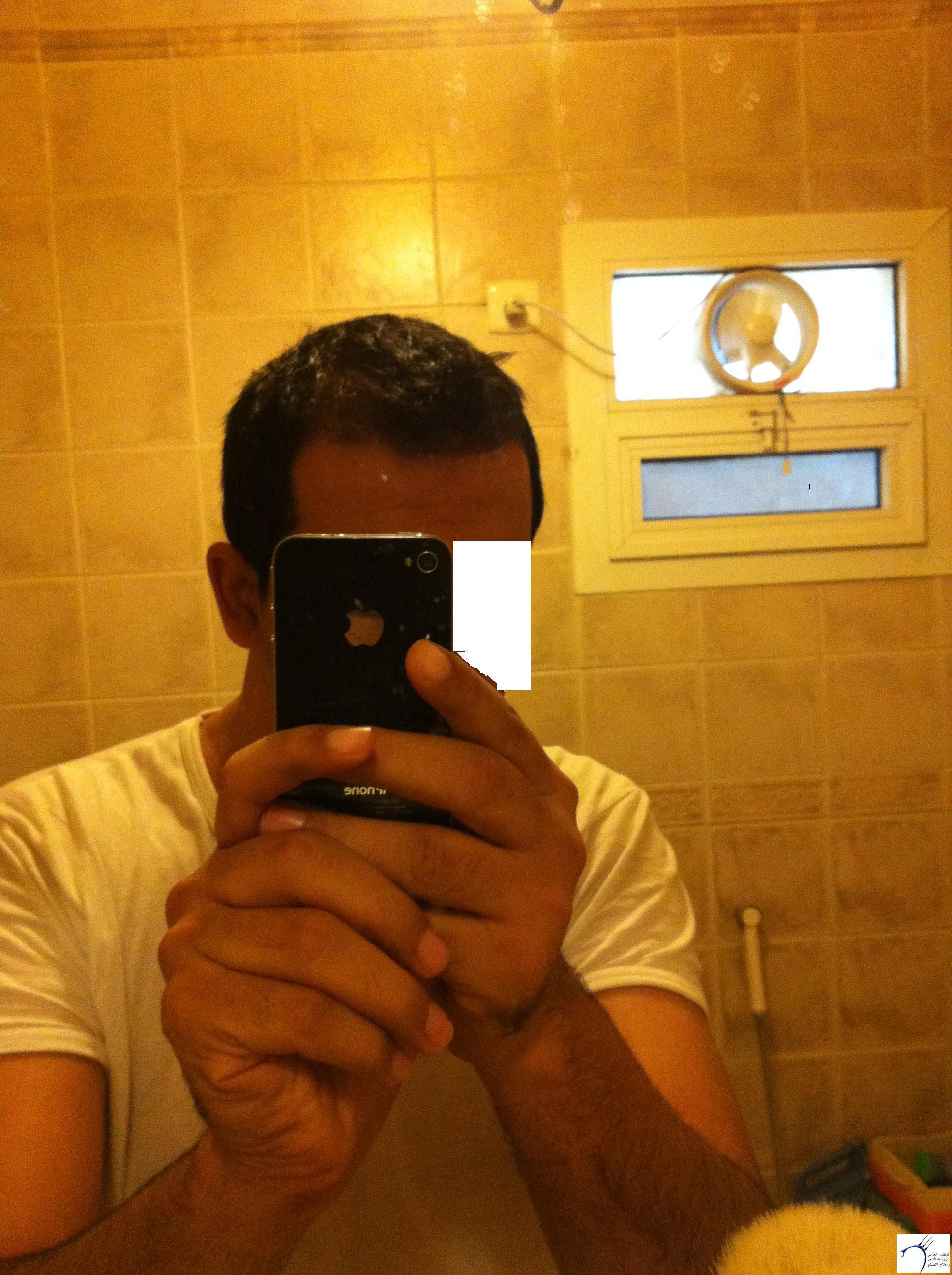 تجربتي لزراعة الشعر الدكتور Tayfun www.hairarab.com841f