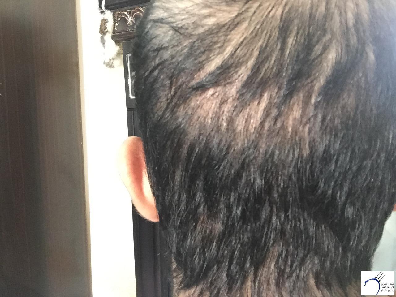www.hairarab.com84ad