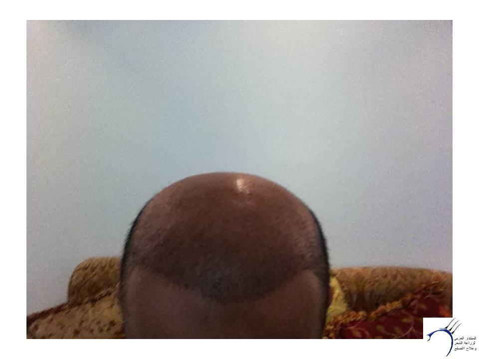 بعون الله وتوفيقه الزراعة بمركز www.hairarab.com8505