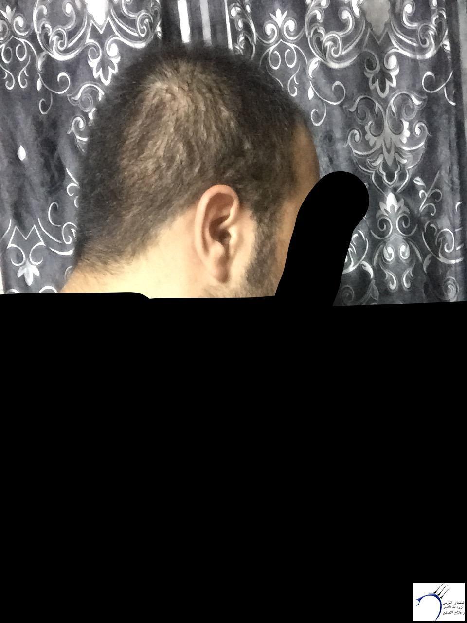 تجربتي رويال تحديث الشهر الرابع www.hairarab.com8602