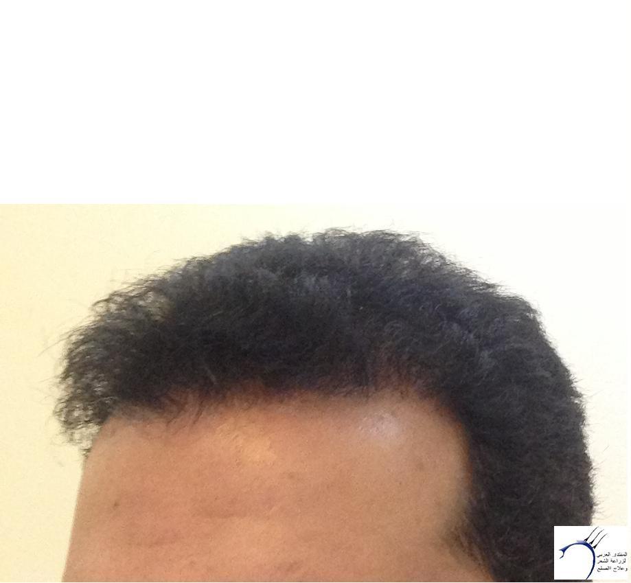 تجربتي لزراعة الشعر الدكتور Tayfun www.hairarab.com86c5