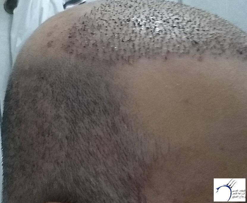 زراعتي الأخصائي محمد جوتشلو بتاريخ www.hairarab.com8728