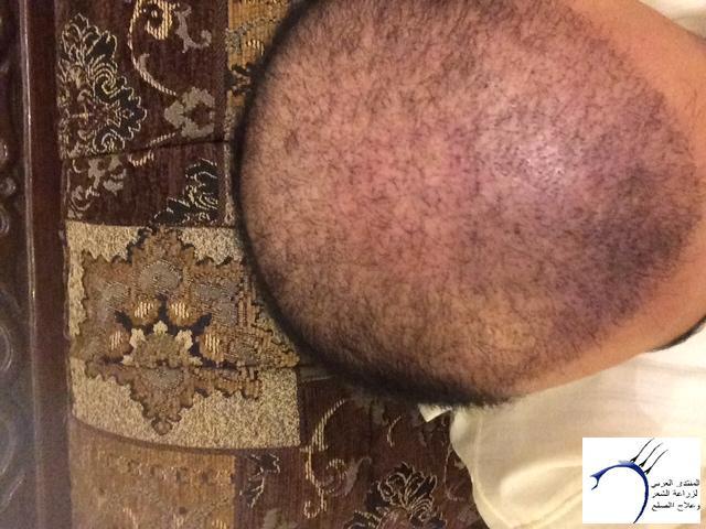 تجربتي محمد قوتشلو ...الشهر العاشر www.hairarab.com8764