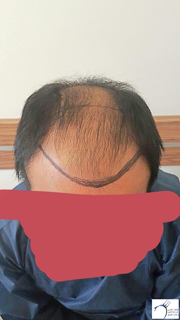 تجربتي رويال تحديث الشهر الرابع www.hairarab.com881d
