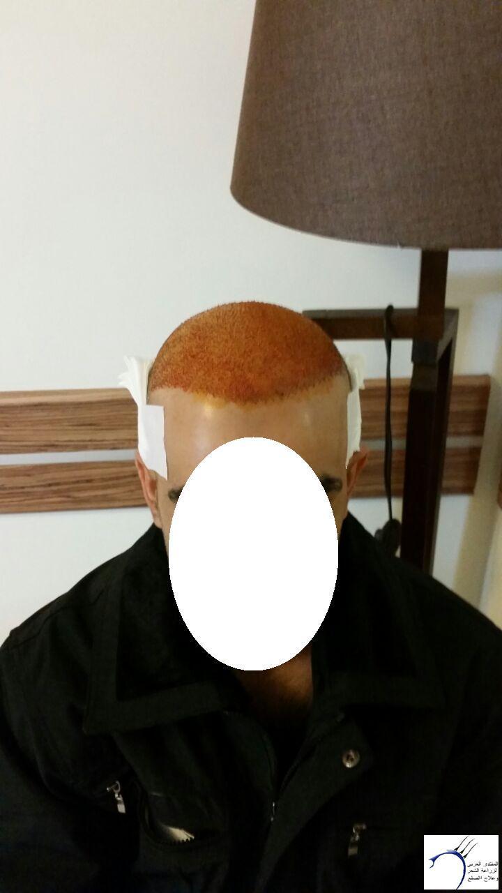قصتي زراعة الشعر رويال