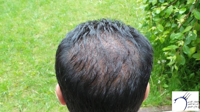 تجربتي لزراعة الشعر تركيا الدكتور www.hairarab.com8aab