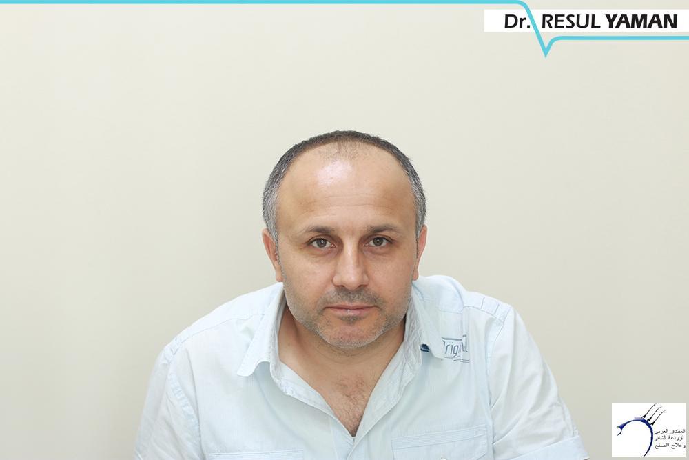 نتيجة السيد Emin Demir زراعة www.hairarab.com8b19