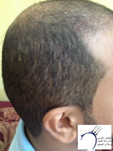 أقدم تجربـتي لزراعة الشعر مركـز www.hairarab.com8b3f