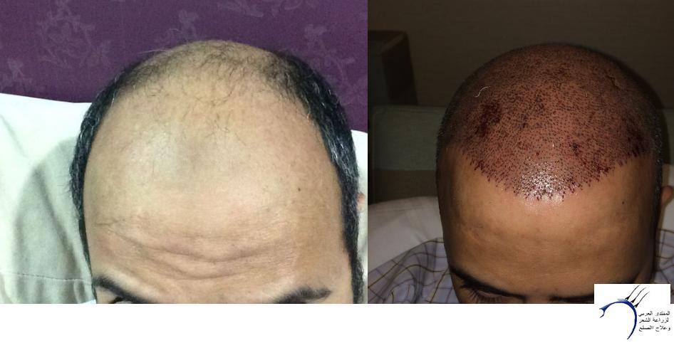 www.hairarab.com8b90